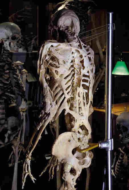 The skeleton of Harry Raymond Eastlack, a 39-year-old male with fibrodysplasia ossificans progressiva, or FOP — an extremely rare inherited disorder in which bone forms
