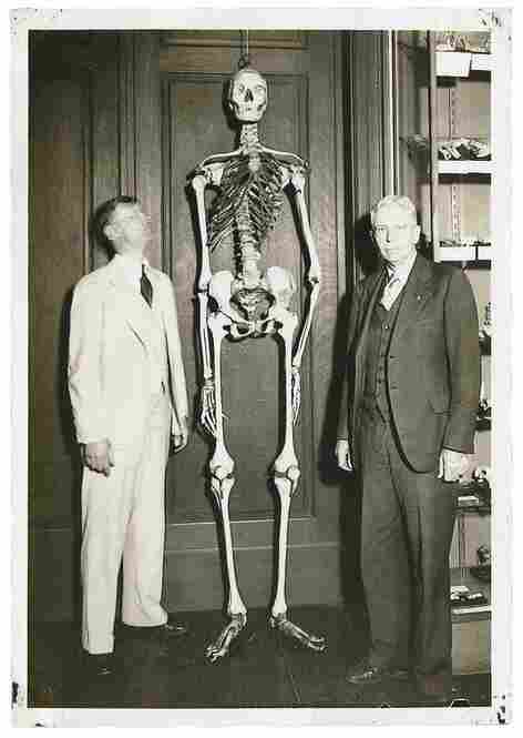 The Mutter Giant is the skeleton of a male, estimated to be approximately 7 feet 6 inches tall and between 22 and 24 years old. It was acquired by the museum in 1877 at a cost of $50, and nothing is known about its history except that it came from Kentucky. Philip B. Wallace, Mutter Museum Archives
