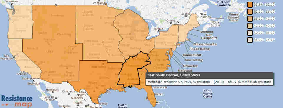 A look at the distribution of drug-resistant staph bacteria across the county shows the problem is worse in the South.