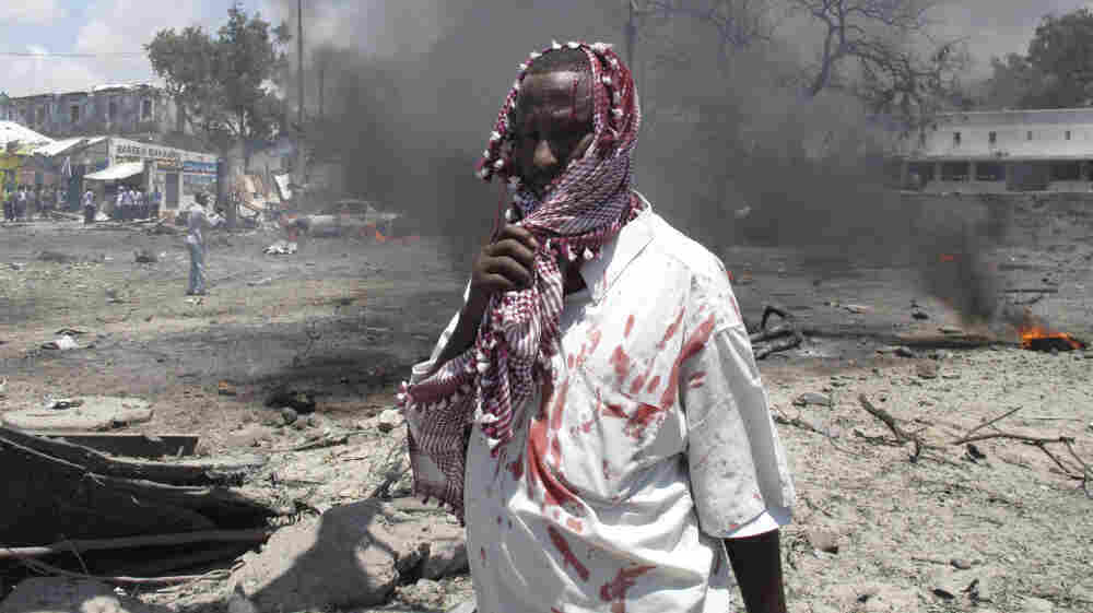 A wounded man stands at the scene of the explosion in Mogadishu, Somalia, earlier today.