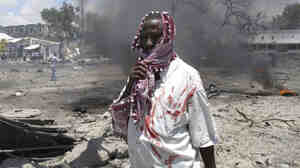A wounded man stands at the scene of the explosion in Mogadishu, S