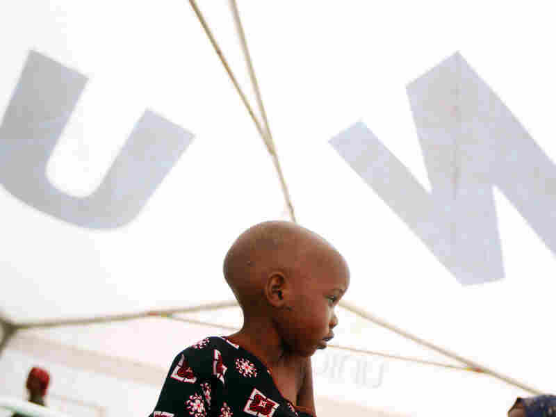 Madow Weydow, 3, from Somalia, sits in an eastern Kenyan hospital near the Somali border. Madow is suffering from anorexia and severe malnutrition.