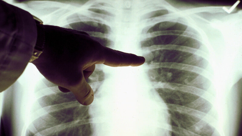 looking for lung cancer with a yearly x ray doesn t reduce deaths