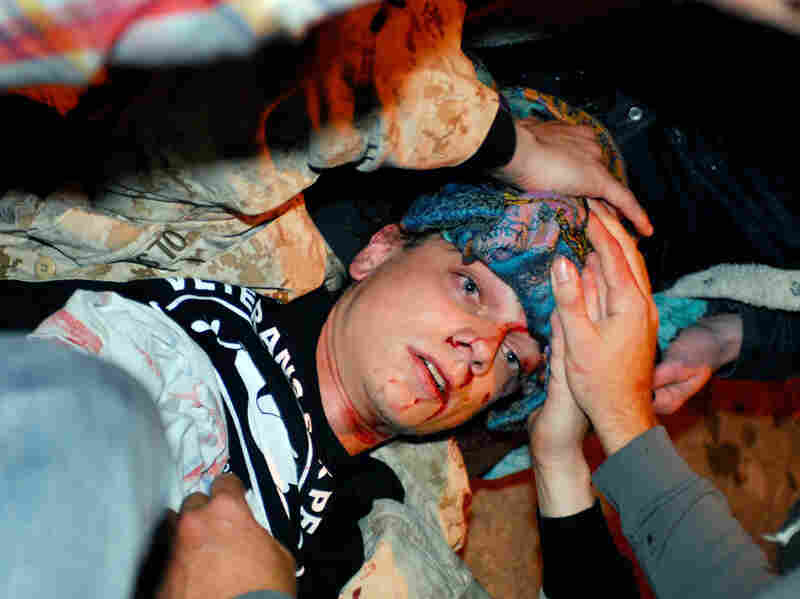 Olsen lies on the ground bleeding from a head wound after being hit by a projectile during the Occupy Oakland protest on Tuesday.
