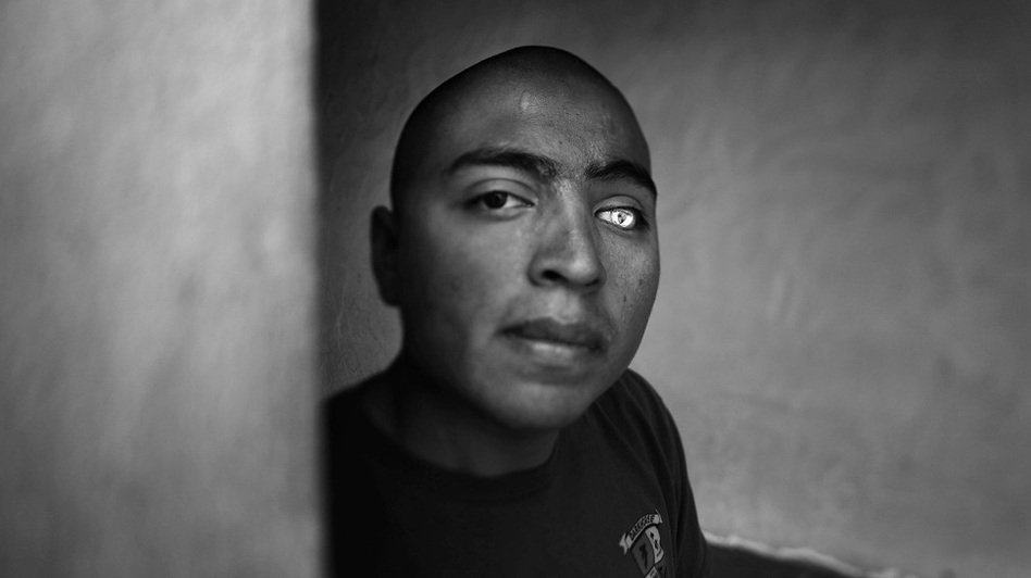 Lance Cpl. Josue Barron lost his left leg and left eye in Sangin, Afghanistan, while serving with the 3/5 Marines from Camp Pendleton, Calif. He now has a glass eye that is emblazoned with the 3/5 insignia. (NPR)