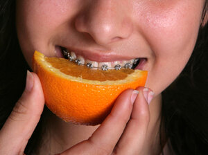 Anthropologists say early humans who hunted and gathered had longer jaws to hold all those teeth.