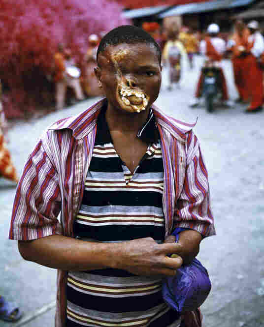 Untitled, 2011A severely disfigured young man in North Kivu