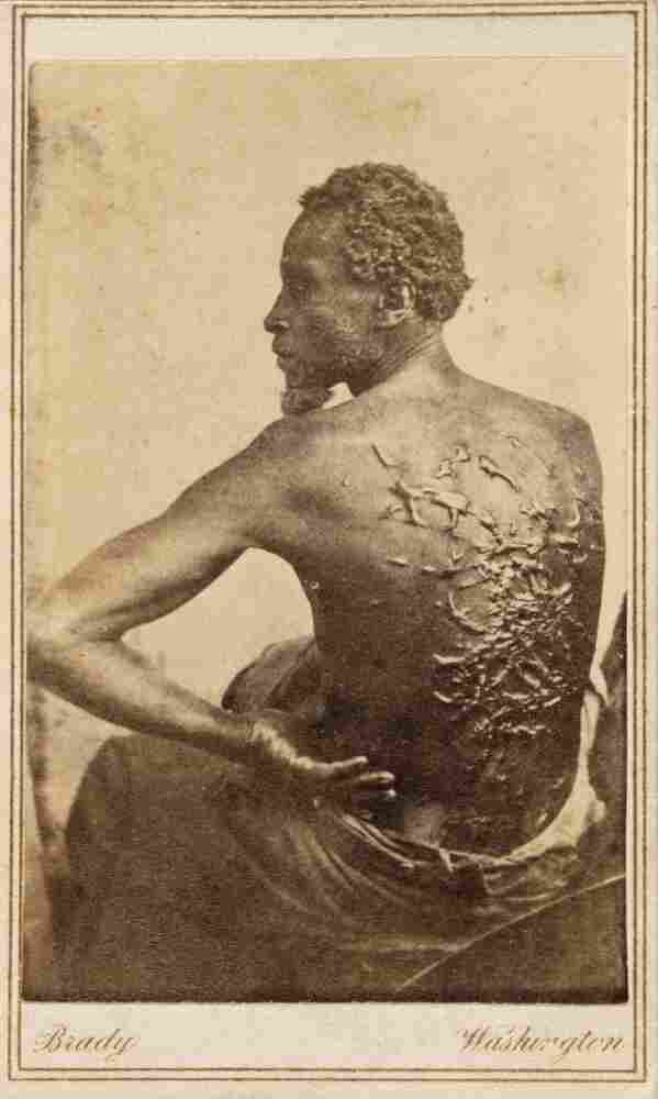 During an 1863 medical exam at a Union camp, an escaped slave known only as Gordon was found to have horrific scarring on his back, the result of whippings he had received from his former overseer.
