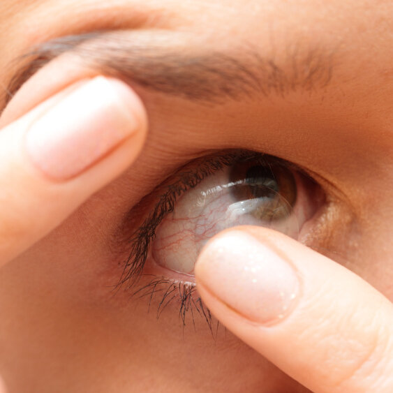 Dirty Little Secret: Almost Nobody Cleans Contacts Properly