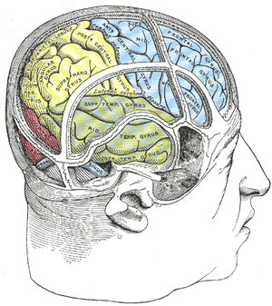 A stroke affecting the right side of the brain can lead a person to be visually unaware of what's happening on the left.