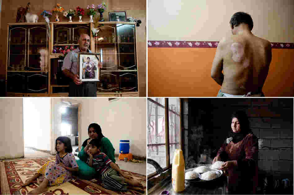 Iraqi photographer Pazhar Mohammad tells the story of Kirkuk, an oil-rich city in northern Iraq with a grisly past and an uncertain future. His portraits show Iraqis who have been injured or who have lost loved ones.