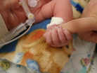 A little sugar can relieve preemies' pain in intensive care.
