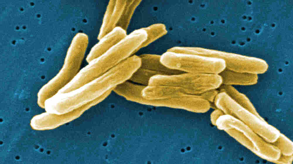 An image of Mycobacterium tuberculosis bacteria captured with an electron microscope.