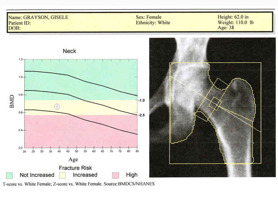 NPR journalist Gisele Grayson got her hip bone scanned a couple of years ago and discovered she has osteopenia.
