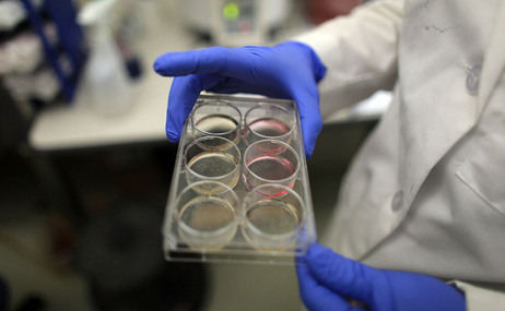 A scientist holds a tray of stem cells in a lab, in this file photo from 2010.