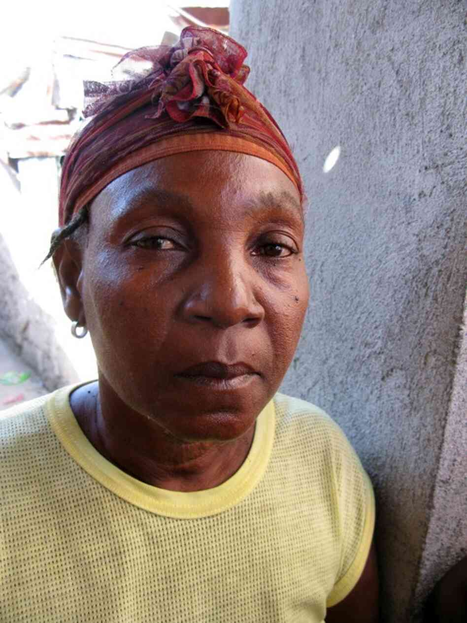 "Antonina Tanis, 56, contracted cholera in November 2011. ""I was vomiting. I had diarrhea,"" she recalls. ""I couldn't stand up. I fell like three or four times trying to get to my feet."" She says there's no way she could have gotten herself to medical care, and she would have died if her neighbors hadn't carried her to a clinic."