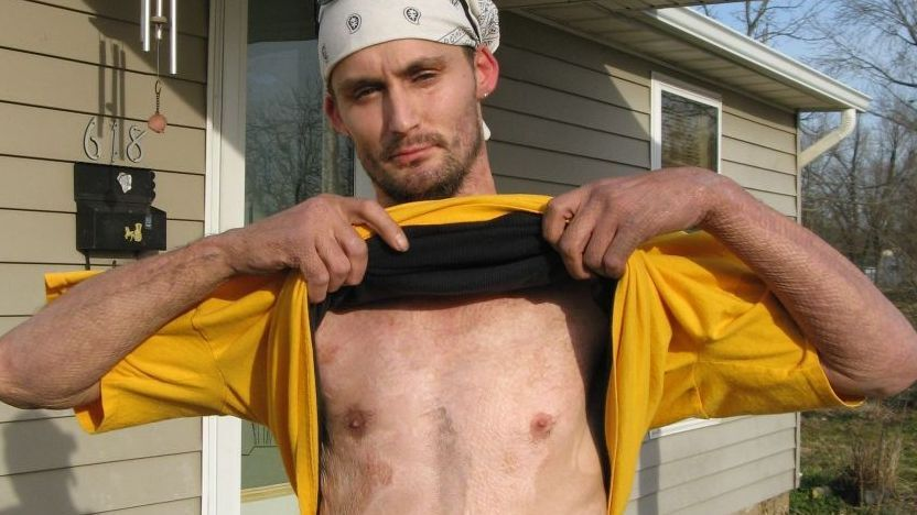 shake and bake meth causes uptick in burn victims npr