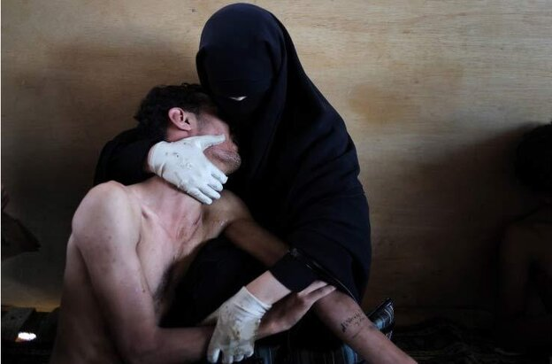 "The 2011 ""photo of the year"" in the World Press Photo contest captures an intimate moment between a woman and her wounded relative during demonstrations in Yemen on Oct. 15."