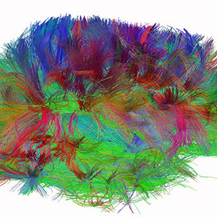 A diffusion spectrum image shows the brain wiring in a healthy human adult.