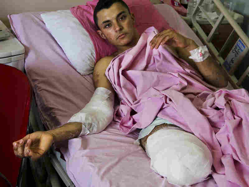 Mohammed Ibrahim lies in a hospital bed in Antakya, Turkey. The 18-year-old Syrian tried to help victims of an artillery shelling in his village near Hama when another shell shattered his right leg. His leg was amputated and his body is filled with shrapnel.