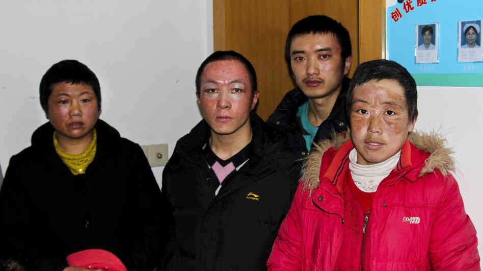 Workers burned during an explosion at an Apple supplier factory in Shanghai are seen at