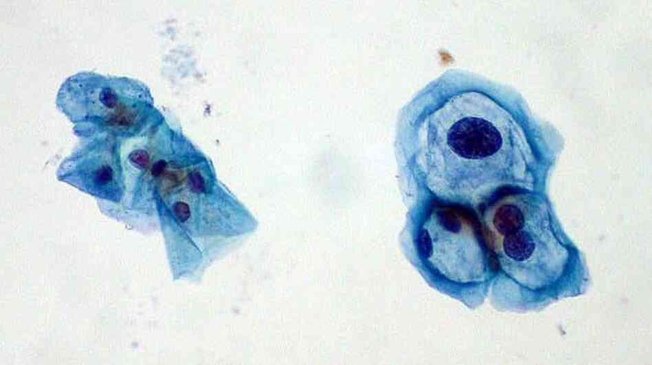 Cells gathered during a Pap test. Those on the left are normal, and those on the righ