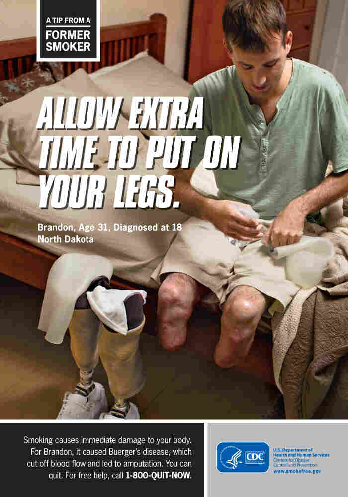 One of the graphic anti-smoking ads that the Centers for Disease Control and Prevention will run soon.