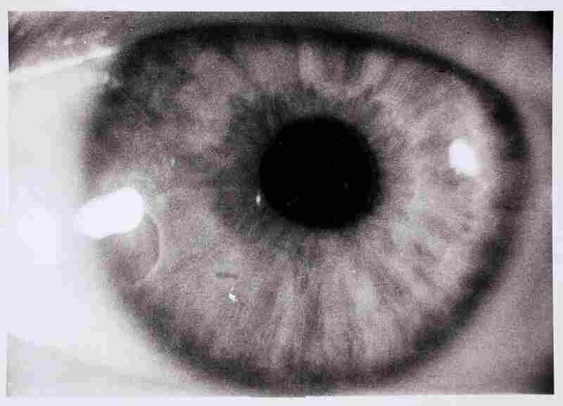 Diego's eye, 1936