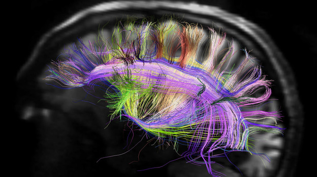 This image shows the grid structure of the major pathways of the brain. It was created using a scanner that's part of the Human Connectome Project, a five-year effort which is studying and mapping the human brain. (MGH-UCLA Human Connectome Project)