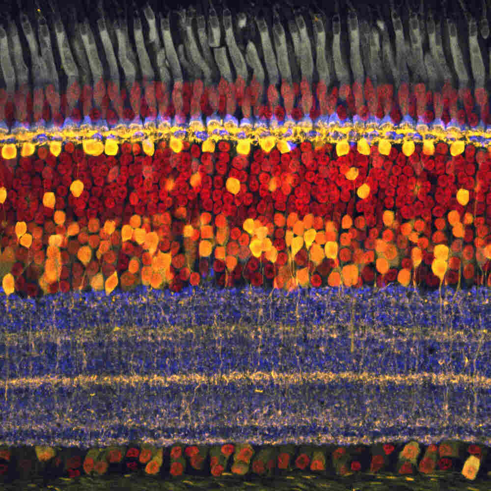 This image of a chick's retina reveals the three basic stages of processing by the circuit that captures light and translates it into signals the brain can understand.