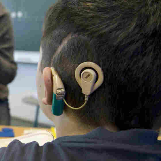 Cochlear Implants Redefine What It Means To Be Deaf