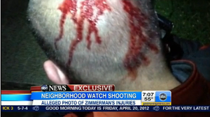 A photograph, ABC News says shows blood on George Zimmerman's head.