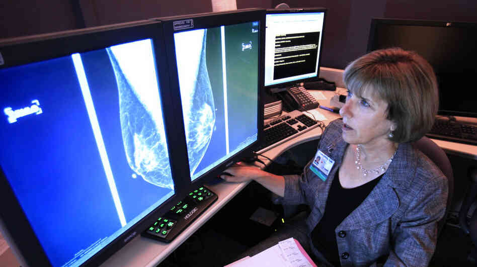 Karen Lindsfor, a professor of radiology and chief of breast imaging at th