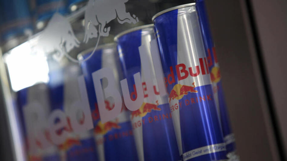Drinks like Red Bull contain citric acid, which can strip away the enamel that protects teeth from decay. (AFP/Getty Images)