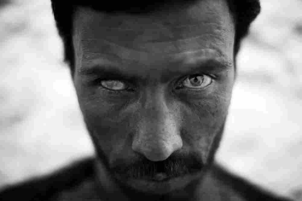 Manullah Ahmadzai, 27, lost the sight in his right eye while serving as a front-line soldier in the Afghan military. Ahmadzai is one of many soldiers who have been severely injured and say promised government benefits don't always arrive.