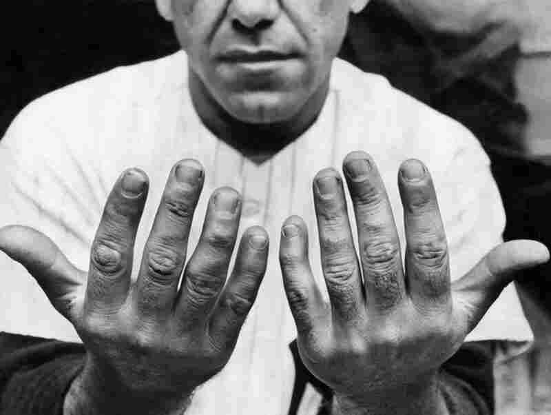 """Oct. 7, 1956: Yogi Berra's hands were the focus of an article titled """"Hands of Catchers Take Battering,"""" published five days after the photo was taken. """"These catchers' hands will win no beauty prize,"""" the reporter wrote, """"but as functional implements they rate special awards."""""""