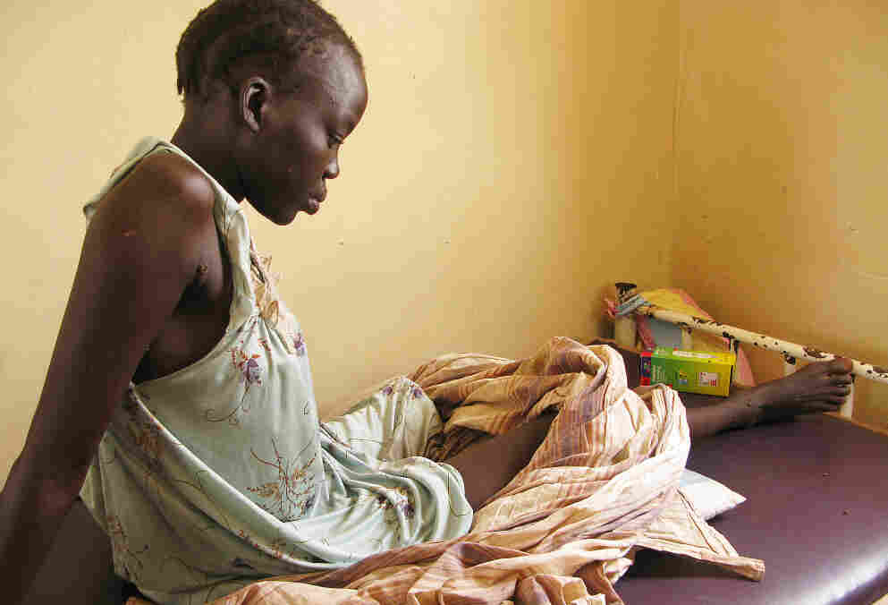 Nyachieng Nguot Teng, 25, lost her left leg and her 7-month-old son suffered a fractured leg when a Sudanese bomb fell on her hut in Lalat, South Sudan, on May 5. The United Nations is trying to prevent the recent fighting between the two Sudans from escalating into full-scale war.