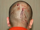 A photograph of George Zimmerman's head taken after the Feb. 26 shooting death of Trayvon Martin. It shows blood from injuries he Zimmerman says he received during their encounter.