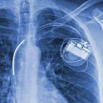 A few years ago, Hugo Campos was diagnosed with a heart condition. Then he received an implantable cardioverter-defibrillator, or ICD, shown here in his X-ray.