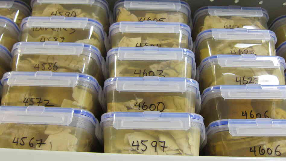 Unrefrigerated brains in preserving solution are stacked high on shelves at the Harvard Brain Tissue Resource Center at McLean Hospital.