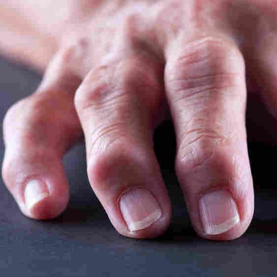 Obesity Stokes Rheumatoid Arthritis With More Than Just Extra Weight
