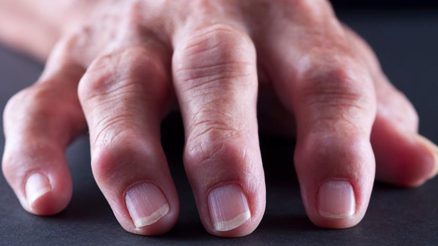 Obesity Stokes Rheumatoid Arthritis With More Than Just