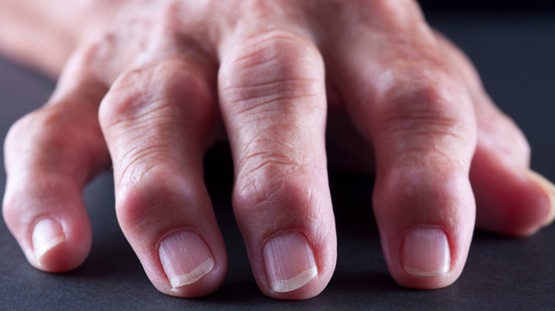 Rheumatoid arthritis is an autoimmune disease that can cause painful inflammation in the fingers and other joints. (iStockphoto.com)