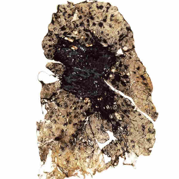 A lung from a coal miner with advanced coal workers' pneumoconiosis, or black lung.