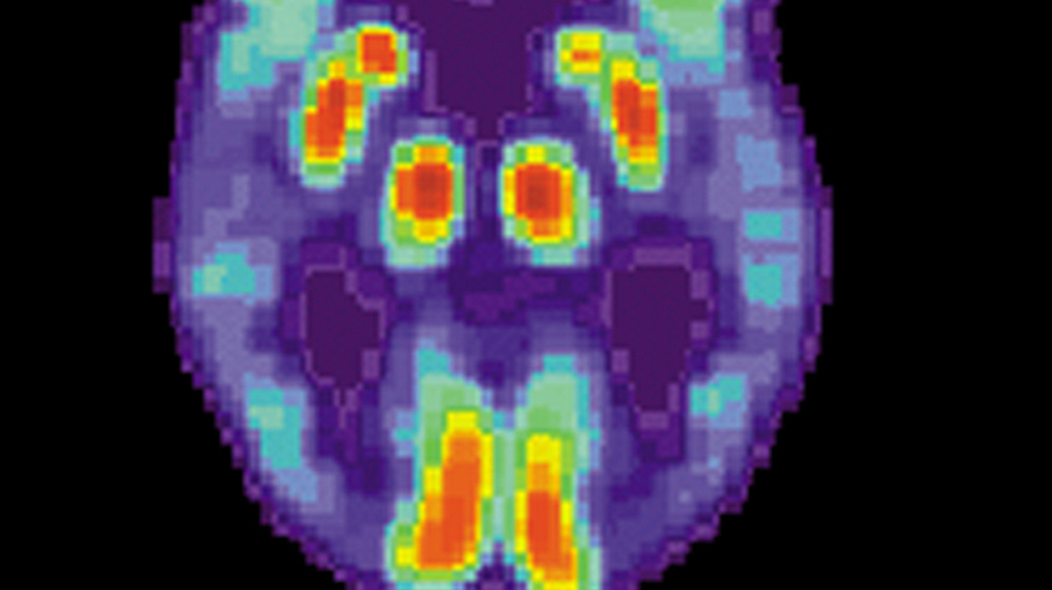 A PET scan of the brain of a person with Alzheimer's disease. (via Wikimedia Commons)