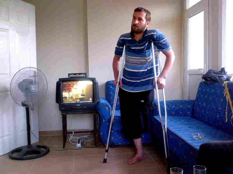 Doctors treating the injured say the Syrian regime is using more lethal weapons and targeting specific areas to maximize the damage. As a result, there have been many amputations, as was the case with this rebel fighter, 28-year-old Raad Ibrahim, who was wounded in Idlib province and is being treated in Turkey.
