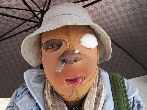 Consuelo Cordoba's partner threw acid at her a decade ago. The 51-year-old Colombian has undergone multiple surgeries and is unable to find work. This year, about 100 cases of acid attacks — mostly against women — have already been reported in Colombia.