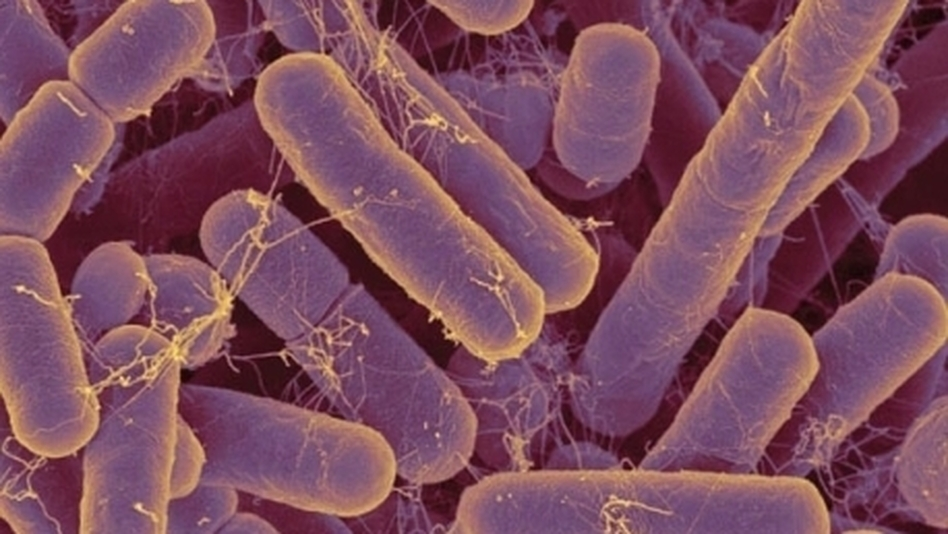 Bacteroides species are some of the most common bacteria in the human gut. (Enviornmental Health Perspectives)