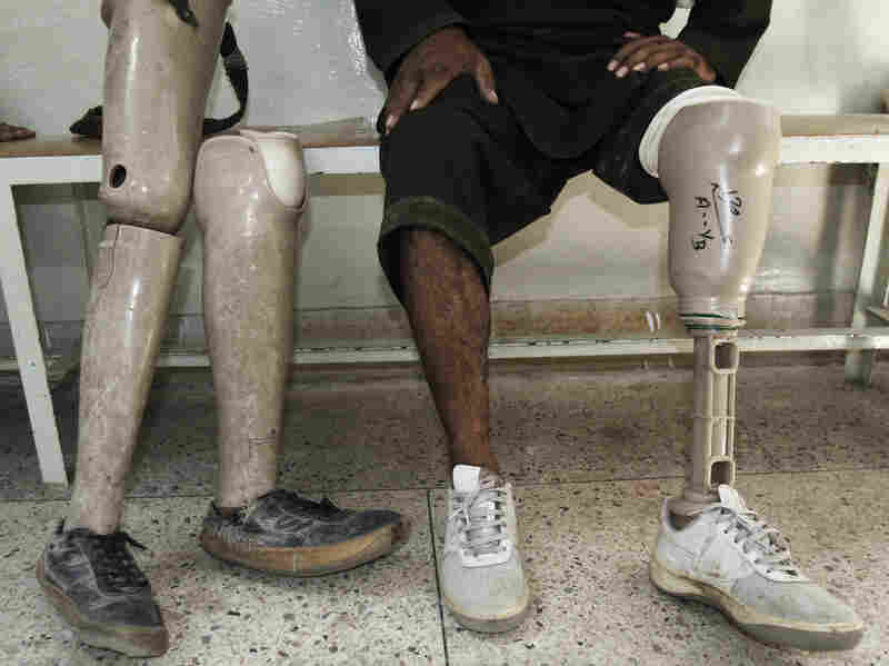 An Afghan man rests after walking on his new artificial leg at the International Committee for the Red Cross Ortho Center in the eastern city of Jalalabad, last month. Many Afghans continue to be injured by mines.