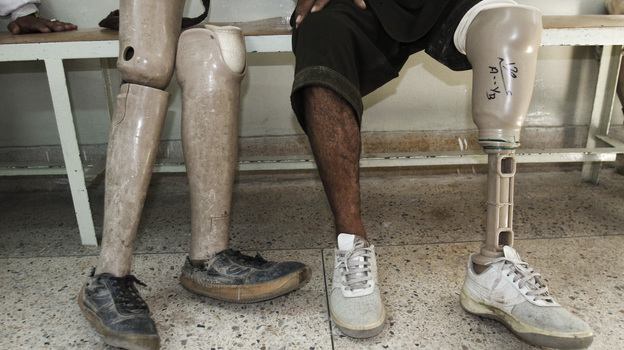 An Afghan man rests after walking on his new artificial leg at the International Committee for the Red Cross Ortho Center in the eastern city of Jalalabad, last month. Many Afghans continue to be injured by mines. (AP)